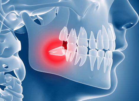 Chirurgia Orale e Parodontologia